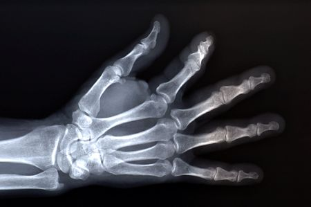 radiological: x-ray of hand