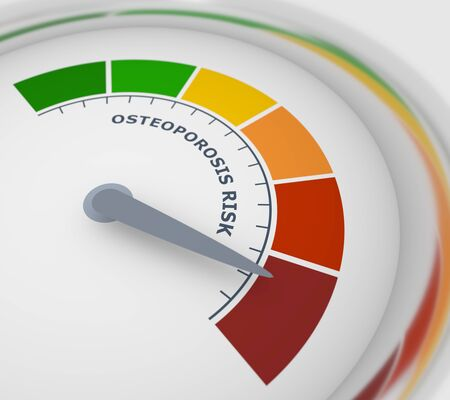 Color scale with arrow from green to red. Osteoporosis risk measuring device icon. Sign tachometer, speedometer, indicators. Colorful infographic gauge element. 3D rendering