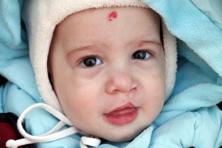 Baby with lip cleft