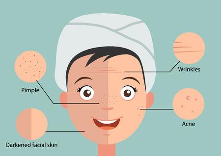 mujer fea: Ilustraci�n de aislado piel del problema