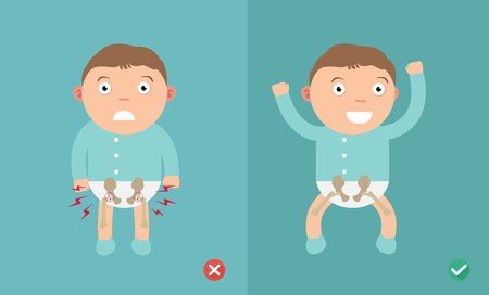 Best and worst positions child for prevention of hip dysplasia,illustration, vector