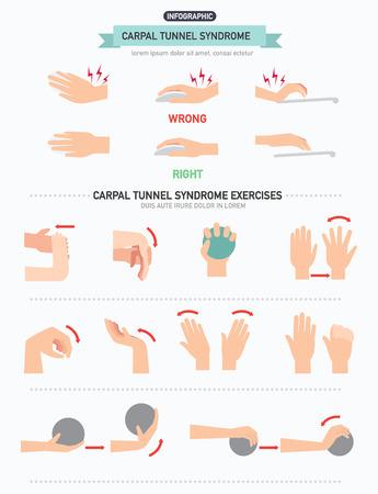 tunel: Síndrome del túnel carpiano infografía, ilustración vectorial.