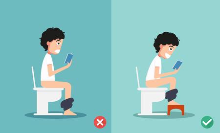 ongezonde vs gezonde posities voor poepen illustratie, vector