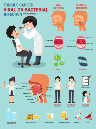 Tonsils caused viral or bacterial infection.vector illustration
