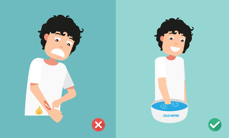 Wrong and right ways first aid emergency treatment skin burn. Vector illustration.