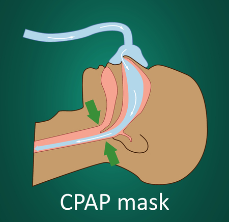 Vector illustration of normal breathing with CPAP mask. Vektorové ilustrace