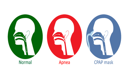 Vector illustration of normal breathing, with apnea disease and with CPAP mask. Illustration