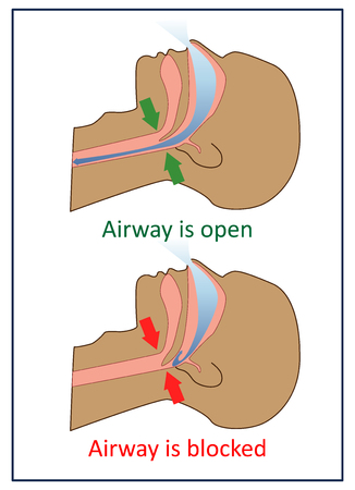 Vector illustration of normal breathing and with apnea symptoms.