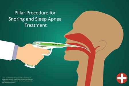 operation for: Vector illustration of procedures for sleep apnea pillar operation.