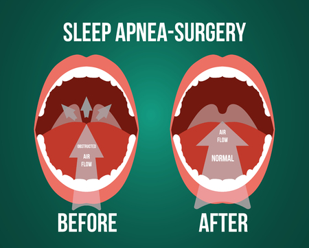 Vector illustration of surgery for obstructive sleep apnea, before and after result. Illustration