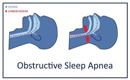 Vector illustration of obstructive sleep apnea. Illustration