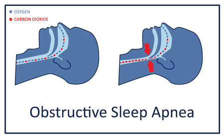 Vektor-Illustration der obstruktiven Schlafapnoe.