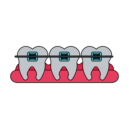 orthodontist: color image cartoon set gum with tooth view and orthodontics vector illustration Illustration