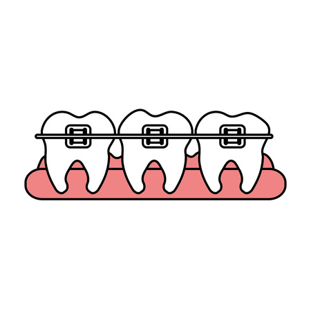 orthodontist: color silhouette cartoon set gum with tooth view and orthodontics vector illustration