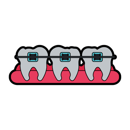 molars with braces dental care related icon image vector illustration design Illustration