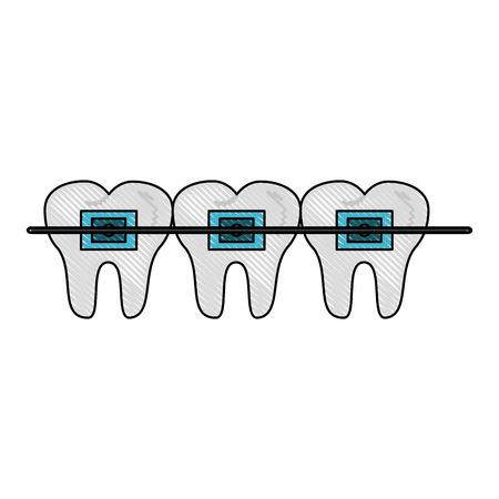 odontology: Odontology dental braces icon. Illustration