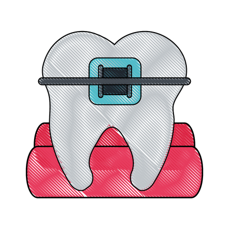 molar with braces dentistry icon image vector illustration design Illustration
