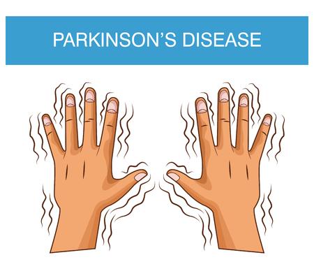 Parkinsons disease cartoon icon vector illustration graphic design Stock Vector - 94418456