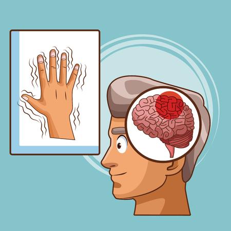 Parkinsons disease cartoon icon vector illustration graphic design Stock Vector - 94657633