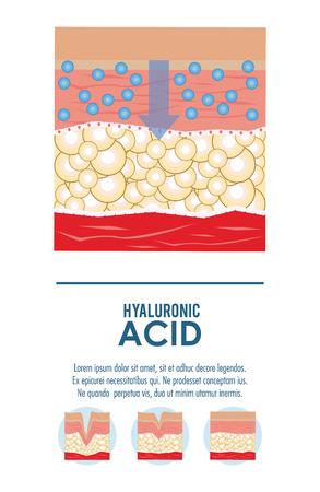 hyaluronic acid filler injection infraphic poster vector illustration graphic design