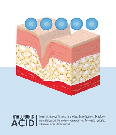 Hyaluronsäure-Füllstoff-Injektion infraphisches Plakatvektorillustrationsgrafikdesign Vektorgrafik