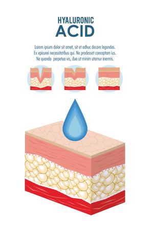 Acido ialuronico filler iniezione infografica flyer illustrazione vettoriale graphic design Vettoriali