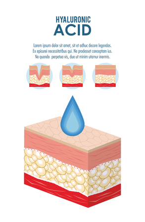 Inyección de relleno de ácido hialurónico flyer infografía ilustración vectorial diseño gráfico Ilustración de vector