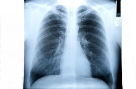 chest x ray: Fumatore