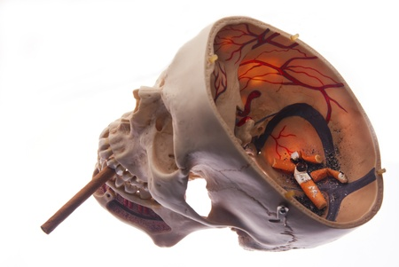 non smoking: Opened skull with ash and cigarettes, non smoking concept Stock Photo