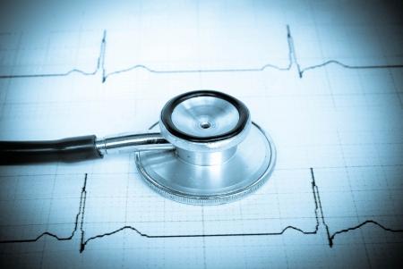 stethoscope on a cardiogram Stock Photo