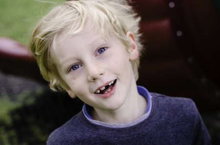 young blonde boy with a missing front tooth smiling and playing outside