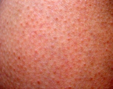 Close up of sunburned skin