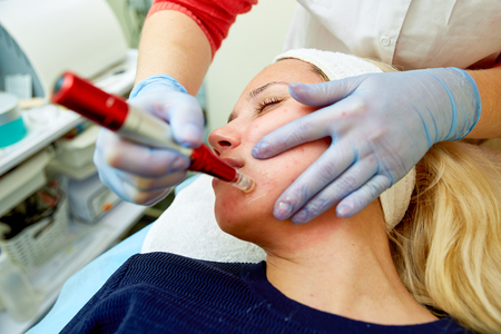 Young woman with good skin having Dermabrasion Cosmetic Treatment  mechanical instrument at SPA Salon