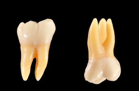 Accurate typodont teeth are shown isolated on black. These teeth are anatomically representative of typical coronal (crown) and radicular (root) structure. photo