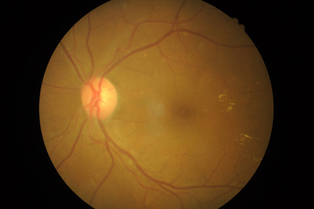 macula: Medical photo tractional retinal detachment of diabetic