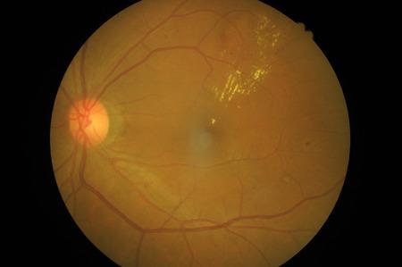 Retinal picture ,Medical photo tractional retinal detachment of diabetic