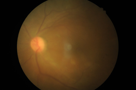 Retinal picture ,Medical photo tractional retinal detachment of diabetic  photo