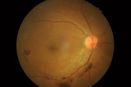 Retinal picture ,Medical photo tractional retinal detachment of diabetic