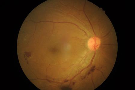Retinal picture ,Medical photo tractional retinal detachment of diabetic 免版税图像 - 27291590