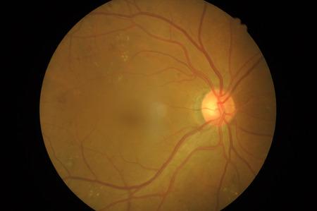 Retinal picture, Medical photo tractional retinal detachment of diabetic Disorders of sclera ,cornea ,cataract