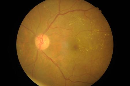 Medical photo of retinal pathology, Disorders of sclera, cornea, cataract