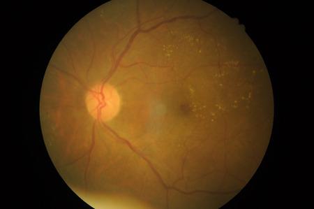 haemorrhage: Medical photo of retinal pathology, Disorders of sclera, cornea, cataract