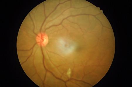 백내장: 망막 병리의 의료 사진, 공막, 각막, 백내장 질환 스톡 사진