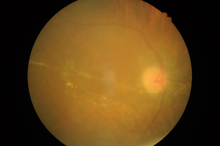 백내장: 망막 병리의 의료 사진, 공막의 장애, 각막, 백내장