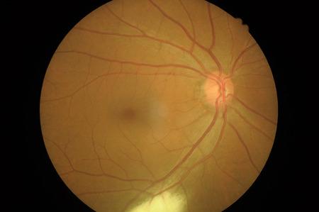 Disorders of sclera, cornea, cataract