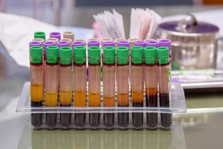 cbc: Blood tube in laboratory  for testing