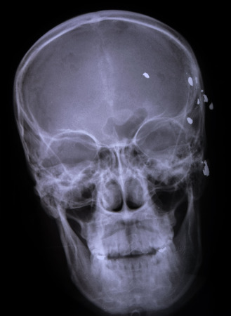 x ray image: X ray image of a bullet from gun in  head.