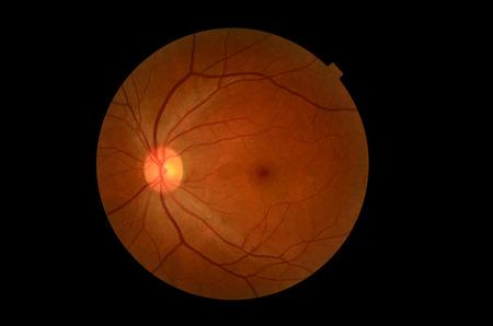 의료 사진 견인 (눈 화면) 당뇨병 망막 검사