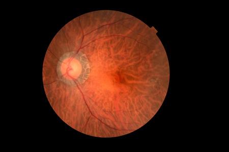 optic nerves: Medical photo tractional (eye screen) diabetes retinal screening