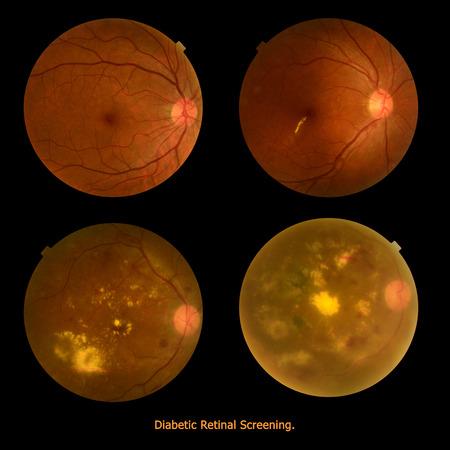 Medical photo tractional (eye screen) diabetes retinal screening